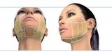 Процедура для обличчя
