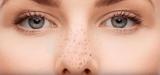 Позбутися від чорних крапок на носі: очищення шкіри, аптечні і народні методи лікування, маски, лосьйони, креми і професійна чистка шкіри