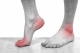 Як полегшити біль при подагрі: поради медиків