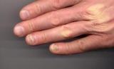 Відшаровується ніготь на руці: можливі причини, особливості нігтьової пластини, способи лікування, корисні поради від фахівців